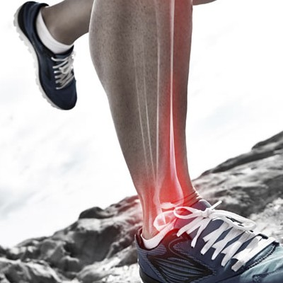 Running Injury Prevention: Taking the Right Steps